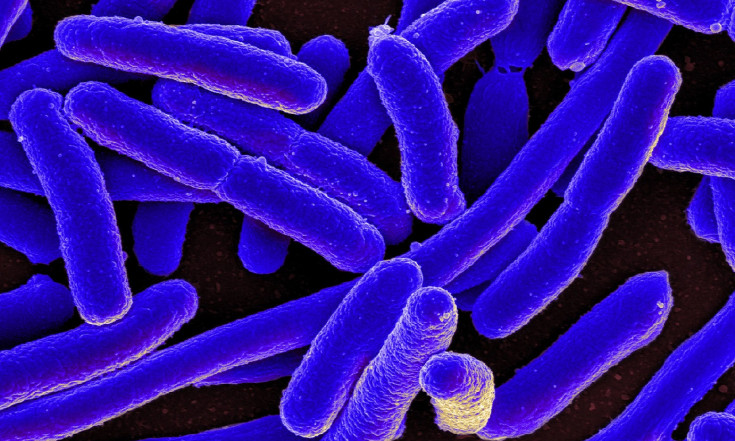 NASA Will Launch E. Coli into Space to Study Antibiotic Resistance